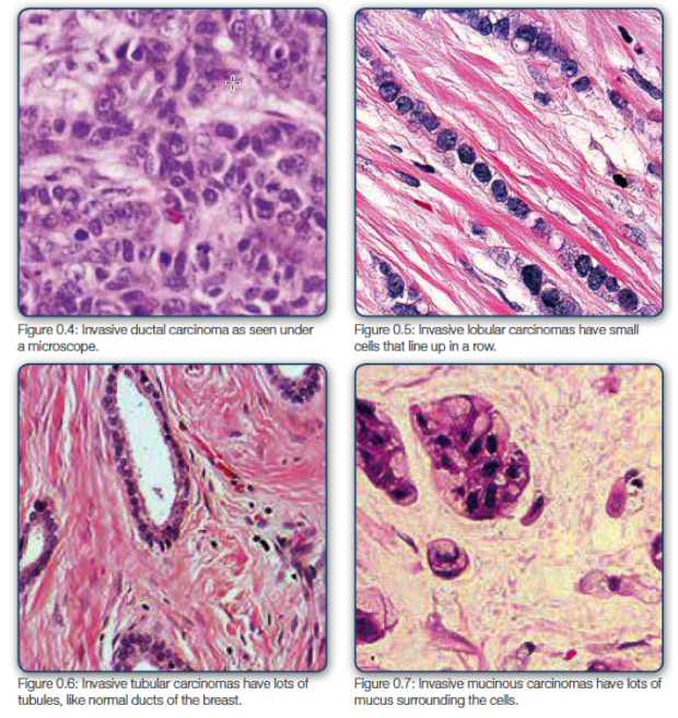 Figure 0.7 Pathology Types